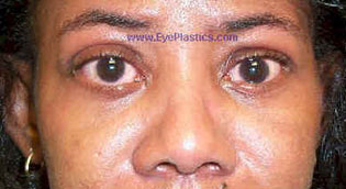 Upper Eyelid Retraction I ost - Operative - 2 weeks after lowering upper eyelids